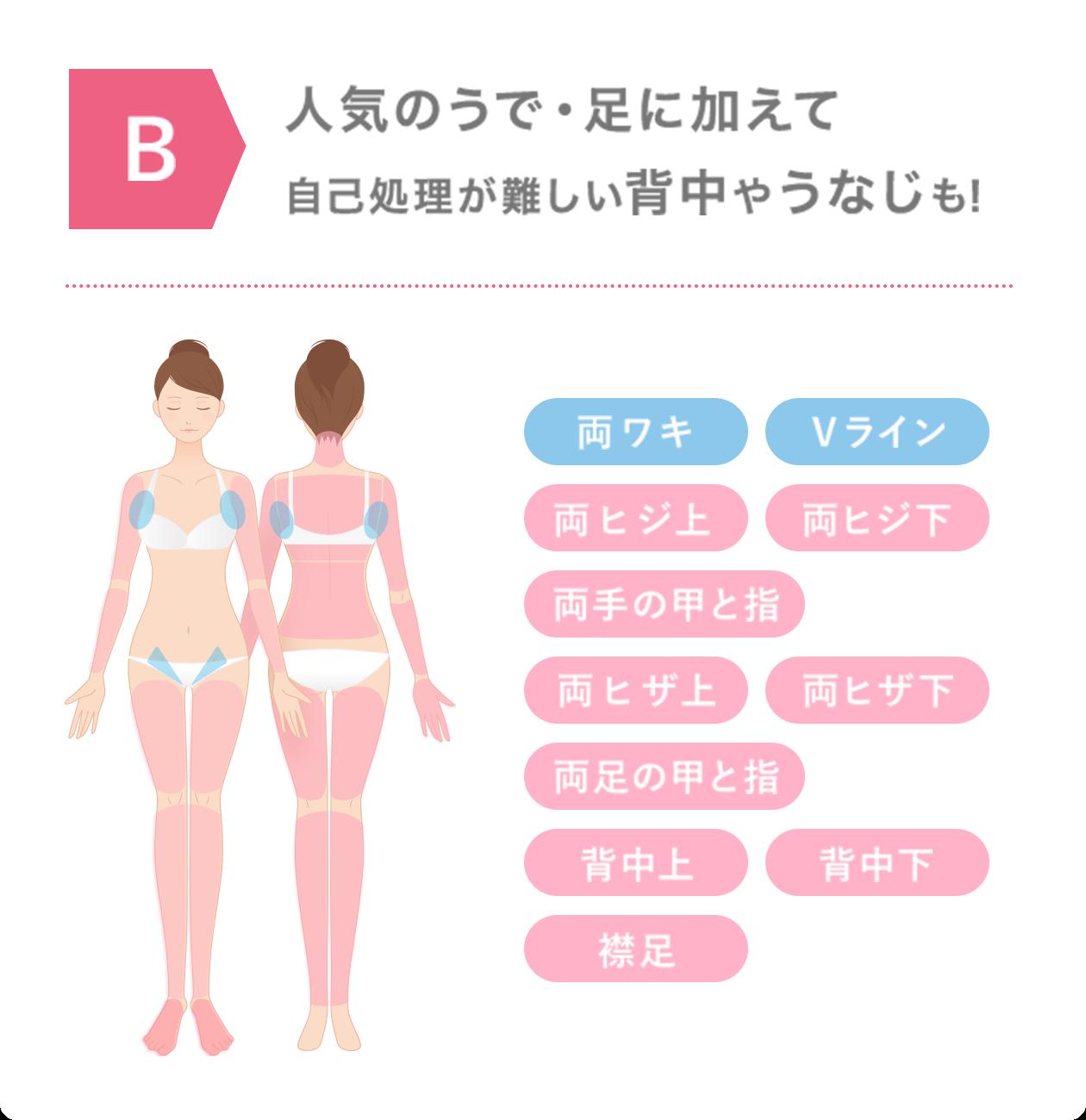 ミュゼ100円脱毛B