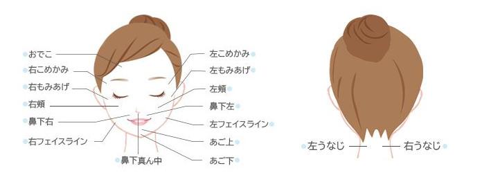 ストラッシュ部分脱毛:顔
